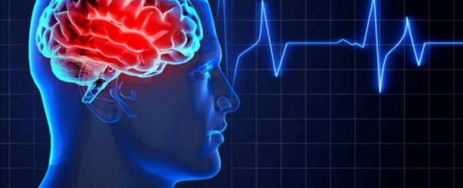 aerobic-exercise-speeds-concussion-recovery