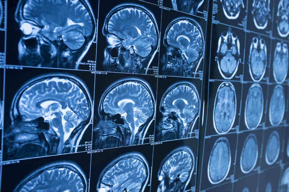 treating_traumatic_brain_injury